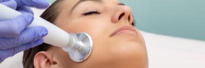 Laser Peeling Therapie