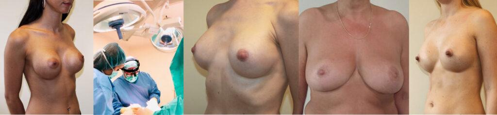 Brustvergrößerung in München