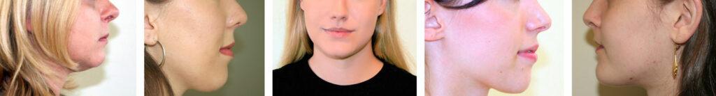 Nasenkorrektur und Nasenoperation in München