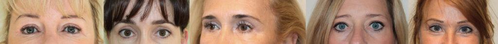 Augenoperation, Oberlidstraffung und Unterlidstraffung in München